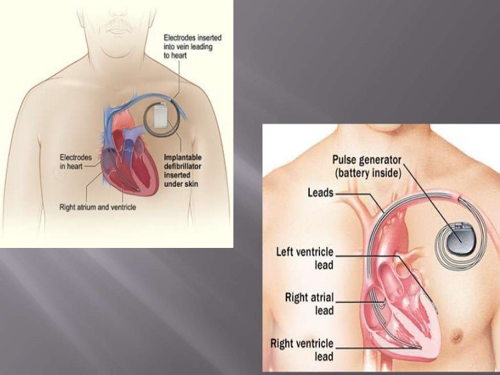 Single vs double chamber pacemaker