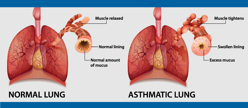 Know the Symptoms of Allergy and Asthma