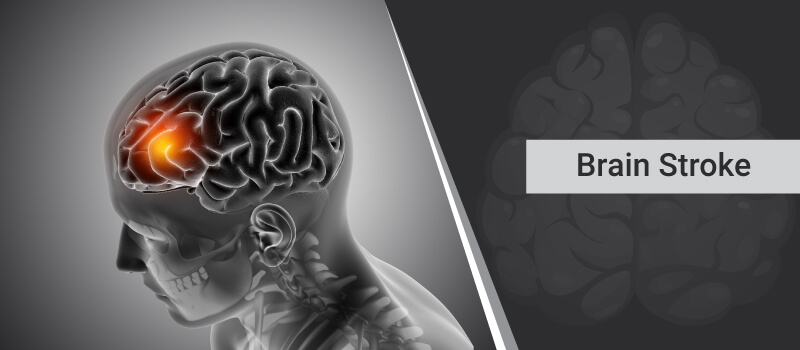 All you need to know about Brain Stroke